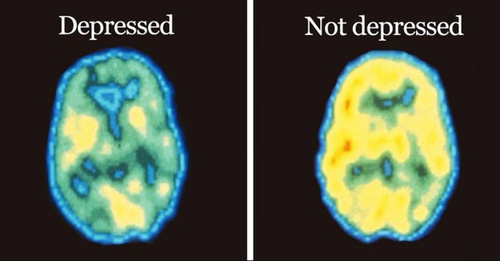 Depression is not choice, it is a form of brain damage