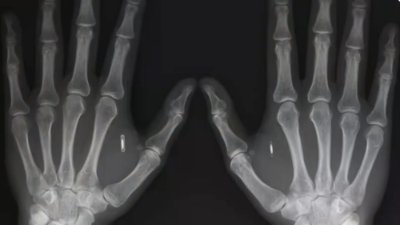 Getting a chip implanted... Is it really that different?
