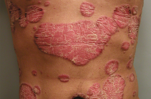 Racial Minorities Less Likely to See a Doctor for Psoriasis