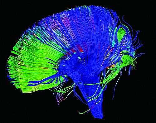 Increased noise around mental health